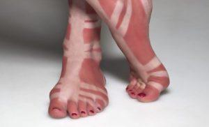 ludivine bronzage pied